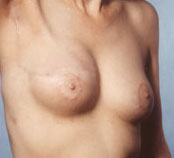 nipple-recon1